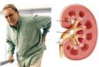 3 bài thuốc dân gian chữa sỏi thận hiệu quả