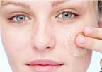 4 cách làm sạch mụn đầu đen một cách dễ dàng