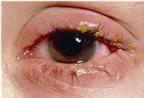 Bệnh đau mắt đỏ: nguyên nhân, phòng và trị bệnh đau mắt hiệu quả