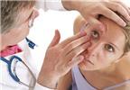 Bệnh đau mắt đỏ: Phòng dễ hơn chữa