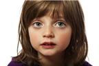 Biện pháp trị sổ mũi cho trẻ tại nhà