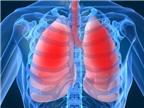 Bí quyết giúp phổi khỏe mạnh