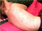 Cách nhận biết, phòng tránh và điều trị sốt phát ban