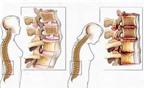 Cách phòng ngừa bệnh xương khớp ở người cao tuổi