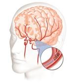 Cách sơ cứu đột quỵ não ngay tại nhà