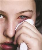 Các loại thuốc điều trị bệnh viêm kết mạc
