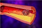 Cao huyết áp và tai biến: Những điều chưa biết