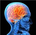 Chế độ ăn tốt cho não của bạn