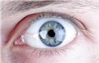 Có thể chữa đục thủy tinh thể bằng thuốc nhỏ mắt