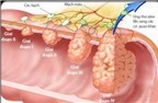Dấu hiệu bệnh ung thư dạ dày