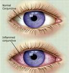 Dấu hiệu của bệnh đau mắt đỏ qua 3 giai đoạn