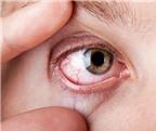 Đau mắt đỏ do nhiễm nước bẩn