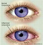 Đau mắt đỏ: Đừng chủ quan!