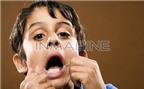 Dạy trẻ về sức khỏe răng miệng (P1)