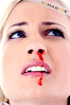 Làm sao khi bị chảy máu cam
