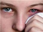 Mẹo chữa bệnh đau mắt đỏ không cần thuốc tây