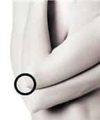Mẹo xử lý những vùng da xấu xí