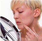 Nên dùng thuốc nào để chữa bệnh nấm da mặt?