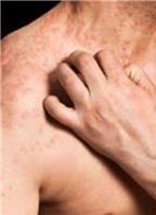 Người bị bệnh chàm có nguy cơ mắc bệnh tim và đột quỵ