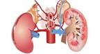 Nguyên nhân gây bệnh phổi hở kẽ ở trẻ em là gì?