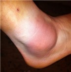 Nguyên nhân gây viêm khớp mắt cá chân