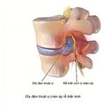 Phương pháp điều trị đau thần kinh tọa