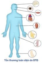 Tiểu đường cần thay đổi lối sống để phòng và trị