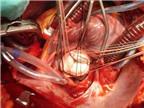 Tim mạch   Hở van động mạch chủ do thấp