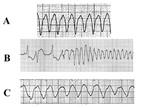 Tim mạch  | Nhịp nhanh trên thất
