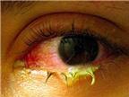 Triệu chứng, biểu hiện bệnh đau mắt đỏ