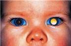 Ung thư   Ung thư mắt
