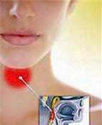 Bí quyết làm giảm chứng đau họng