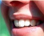 Tự tẩy trắng răng dễ gây hỏng răng