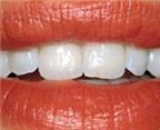 Răng trắng hơn nhờ... trang điểm