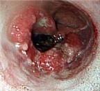 Phát hiện sớm ung thư thực quản