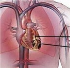 Những điều cần lưu ý ở người mắc bệnh tim