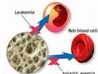 Cấy ghép tủy xương - Vai trò trong điều trị bệnh lý ác tính