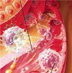 Các thuốc kháng histamin chống dị ứng