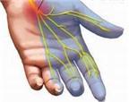 Điều trị tê bàn tay