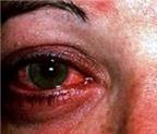 Thuốc trị đau mắt đỏ