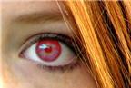 Cách chống mắt đỏ khi chụp ảnh