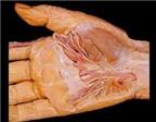 Thuốc điều trị viêm gân cơ bàn tay