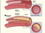 Nhóm thuốc statin điều trị rối loạn mỡ máu