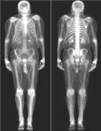 Xơ xương do cường tuyến cận giáp