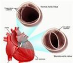 Nguy cơ do hẹp van động mạch chủ