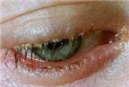 Viêm nhiễm bờ mi mắt, điều trị thế nào?