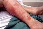 Phòng bệnh ngoài da thường gặp trong mùa hè