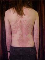 Lupus ban đỏ, vảy nến – khó điều trị, dễ tái phát