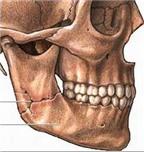 Phương pháp điều trị gãy xương hàm