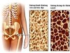 Dinh dưỡng phòng ngừa bệnh loãng xương